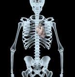 Skeleton Röntgenstrahl, der Herz anzeigt Lizenzfreie Stockfotografie