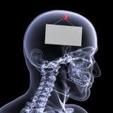 Skeleton Röntgenstrahl - heraus zum Mittagessen Lizenzfreies Stockfoto