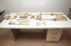 Skeleton skull bones. Close up of a skeleton on white table in autopsy room Stock Photos