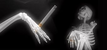 Skeleton smoking party. With black background Royalty Free Stock Image