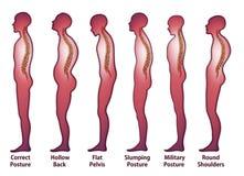 Skeleton_Spine Posture. On white Royalty Free Stock Photo