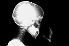 Skeleton thinking with cigarette falling down Stock Images