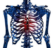 Glass skeleton thoracic pain Stock Images
