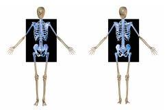 Skeleton vordere und rückseitige x-Strahlen Lizenzfreies Stockfoto