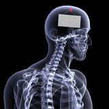 Skeleton X-Ray - Blank Sign Stock Photo