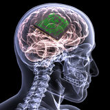 Skeleton X-Ray - Brain with CPU Royalty Free Stock Photography