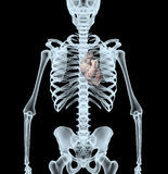 Skeleton X-Ray displaying heart Royalty Free Stock Photography
