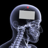 Skeleton X-Ray - Out to Lunch Royalty Free Stock Photo