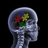 Skeleton X-Ray - Puzzling 2 Stock Photos