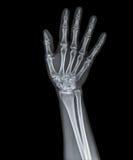 Skelett av handen Fotografering för Bildbyråer