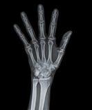 Skelett av handen Royaltyfria Foton