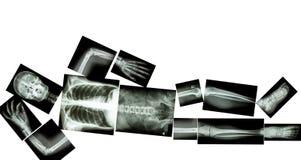 Skelett av människan Arkivfoto