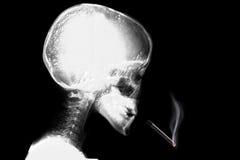 Skelett, das mit der Zigarette unten fällt denkt stockbilder