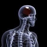 Skelett röntgar - tårtan Arkivfoto