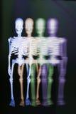 Skeletten Royalty-vrije Stock Afbeelding