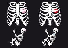 Skelettet behandla som ett barn pojken och flickan, vektoruppsättning stock illustrationer