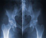 Skiagram hip backbone Royalty Free Stock Images