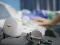 Skillful sonographer using ultrasound machine at work. In clinic/hospital for diagnosis Stock Photos