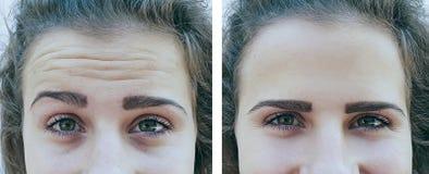 Skillnad för flickaskrynklor före och efter, korrigeringsresultat royaltyfria foton