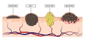 Skillnaden mellan ett födelsemärke, en vågbrytare, en papilloma och en melanom Infographics Royaltyfri Foto