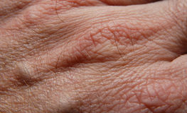 Skin 19. Human skin in close up Royalty Free Stock Photography