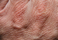 Skin 20. Human skin in close up Royalty Free Stock Photos