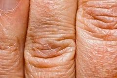 Skin Stock Image