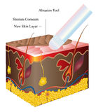 Skin abrasion. Illustration. After this procedure there is a new healthy skin layer Stock Images