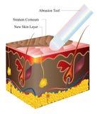 Skin abrasion Stock Images