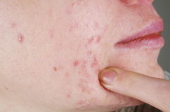 Skin with acne problems. Skin with the acne problems royalty free stock images
