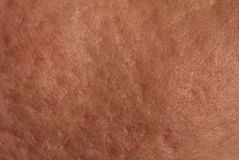 Skin with acne scars Stock Photos