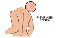 The skin affected by ringworm pink. pityriasis rosea. Stock Images