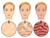 Skin aging. Medical illustration of the effects of skin aging