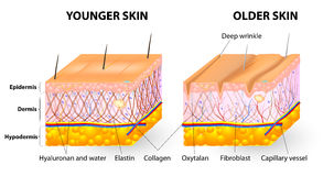 Skin aging. Visual representation of skin changes over a lifetime. Collagen and elastin form the structure of the dermis making it tight and plump. Fibroblasts