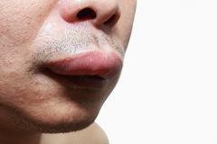 The skin around the mouth. Caused by an allergic reaction Royalty Free Stock Images