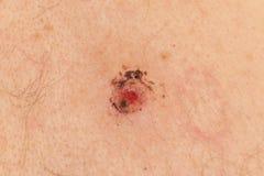 Skin Biospy Stock Photo