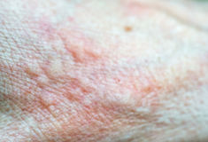 Skin. Blisters on a skin texture close up Stock Image
