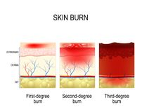 Skin burn. Three degrees of burns. Type of injury to skin. step of burn Royalty Free Stock Photos