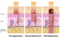 Skin burns. Classification of skin burns with cross section of skin layers, eps8 Stock Image