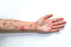 Skin burns on human arm Royalty Free Stock Photo