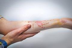 Skin burns on human arm Stock Images