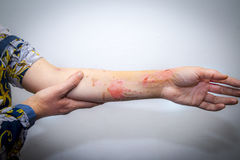 Skin burns on human arm Stock Images