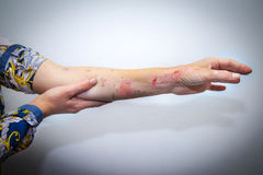 Skin burns on human arm. Human arm with severe burns on the skin Stock Image