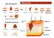 Skin cancer infographics. Melanoma. Skin cancer infographics. Medical Infographic set with icons and other elements Stock Photos