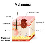 Skin cancer. Melanoma vector illustration