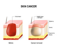 Skin cancer Royalty Free Stock Photography