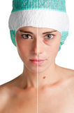Skin care. Before and after portrait of a young woman that undergone a skin treatment Stock Image