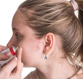 Woman applying treatment cream on problematic skinof the teen girl stock photo