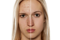 Skin care - cosmetic treatment Royalty Free Stock Image
