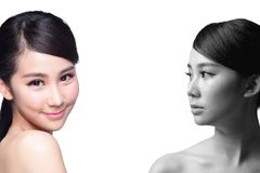 Skin Care woman after and before Stock Photo